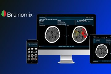 Brainomix Secures £7m ($9.8m) Investment to Tackle Strokes With AI