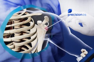 Precision OS Secures $2.3 Million in Series A Funding for Virtual Reality Orthopedic Surgical Education and Pre-Operative Planning Software